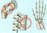Лечение пстеопароза