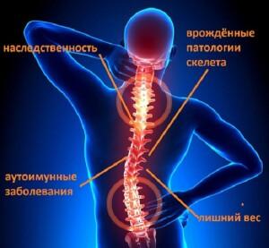 Полисегментарный остеохондроз позвоночника